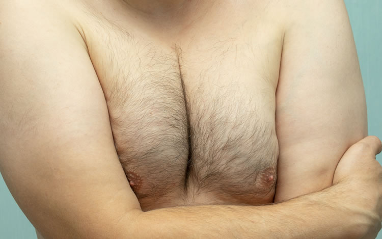 Male Breast Correction